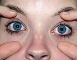 Mirtoplus Herbal Mata Kelainan Pembuluh Darah Retina