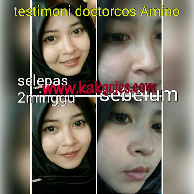 FUNGSI DOCTORCOS AMINO ASID HYBRID,DOCTORCOS AMINO ASID HYBRID,KEGUNAAN DOCTORCOS AMINO ASID HYBRID,DOCTORCOS AMINO ASID HYBRID FAKE DAN ORIGINAL,HARGA DOCTORCOS AMINO ASID HYBRID, CARA MENGETAHUI DOCTORCOS AMINO ASID HYBRID ORIGINAL DAN FAKE,PEMBEKAL DOCTORCOS AMINO ASID HYBRID,TESTIMONI DOCTORCOS AMINO ASID HYBRID