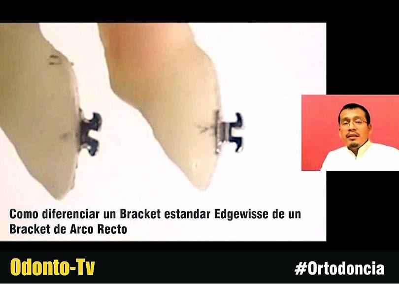 brackets-ortodoncia