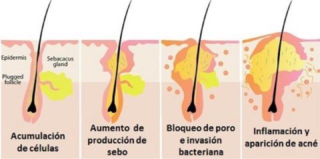 Arreglamos las manchas del acné
