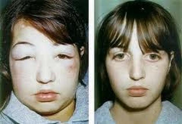 sindromnefrotik Obat Herbal Sindrom Nefrotik