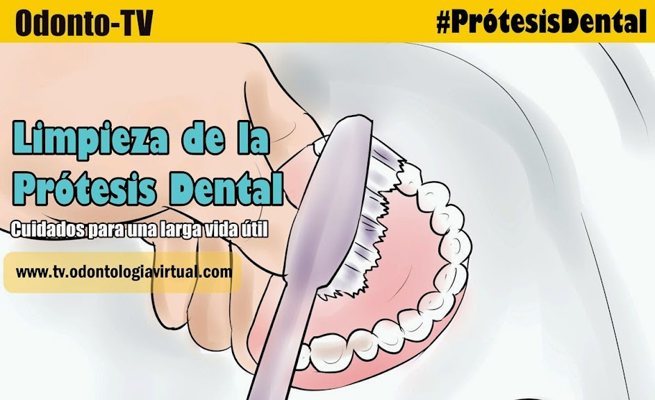 limpieza-protesis-dental