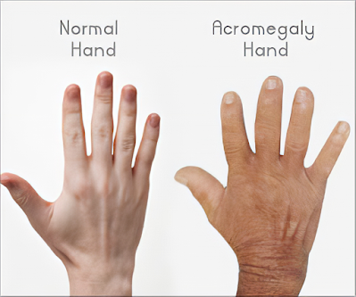 hands of acromegaly  person