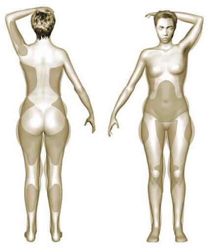 crédit illustration SOF.CPRE : zones habituelles de liposuccion bras, ventre, hanches, fesses, cuisses, genoux,mollets, chevilles