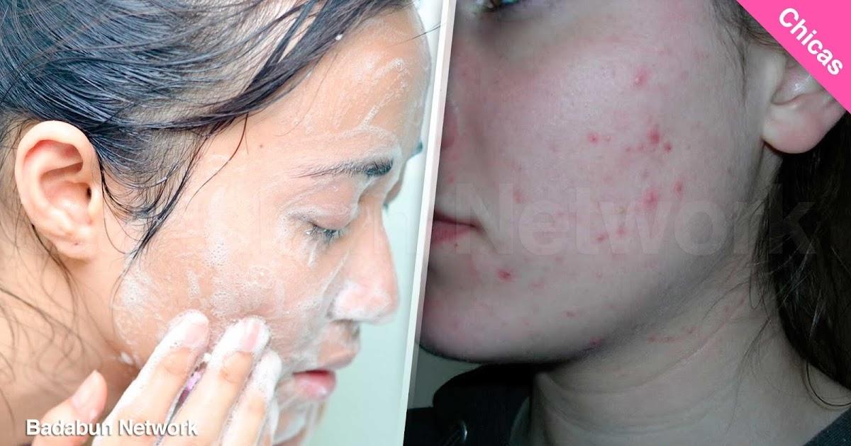 baño regadera higiene salud error chica acné hombre