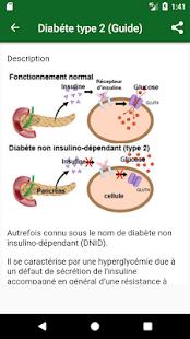Diabète type 2 - náhled