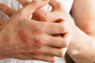 પ્રશ્ન-3 ખસ રોગની સારવાર માટે કઈ દવા વપરાય છે ?
