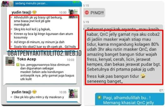 Testimoni Jelly Gamat QnC Untuk Jerawat dan Flek Hitam
