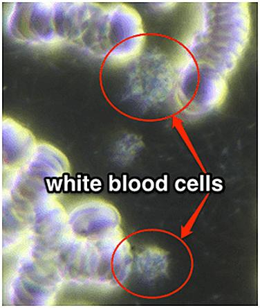 PEMF CHANGES BLOOD