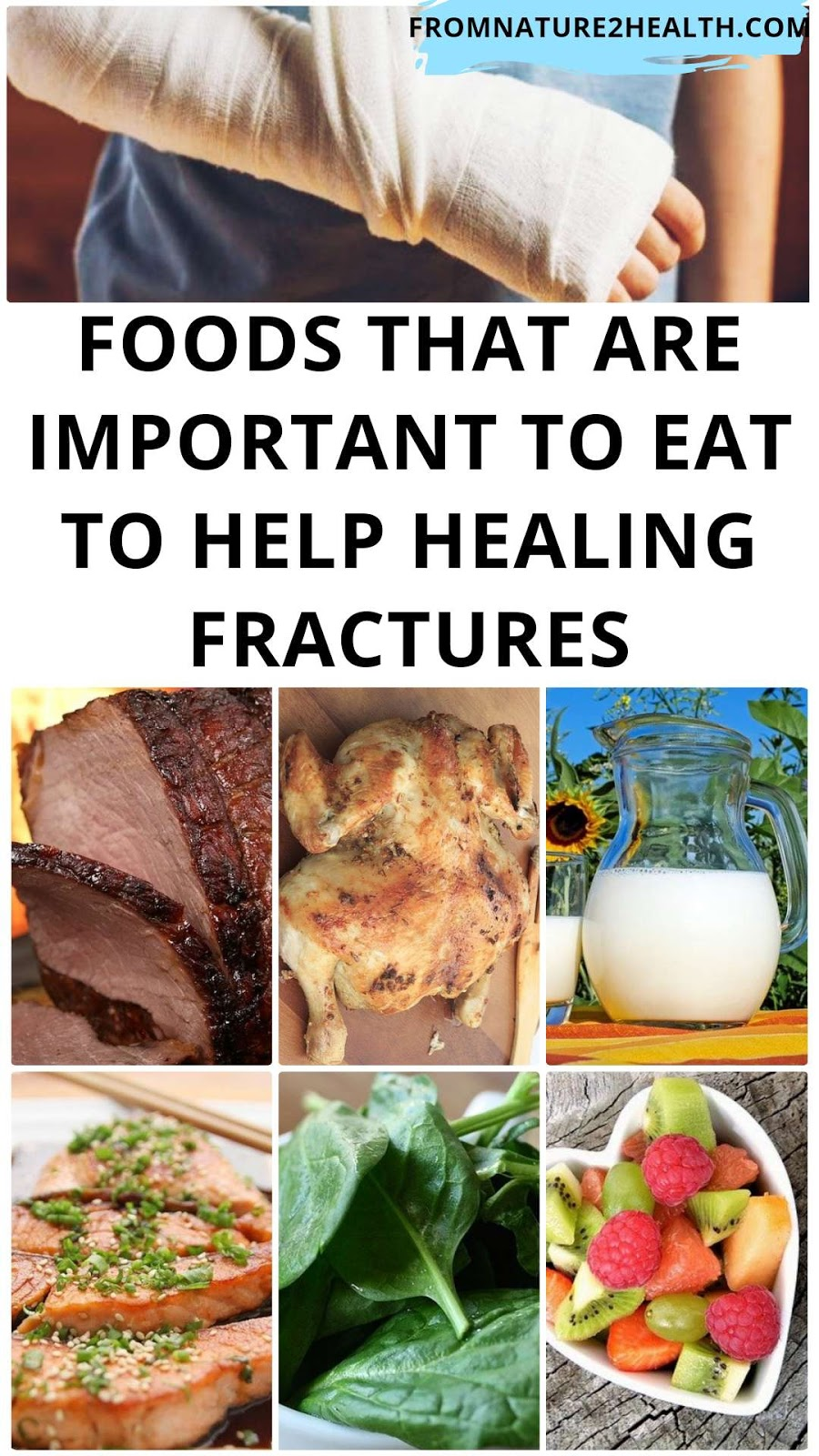 Foods That Are Important To Eat To Help Healing Fractures