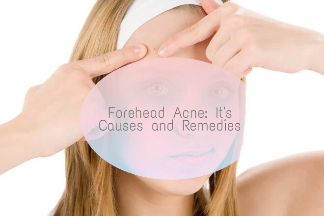 Forehead, acne, remedies, DIY, tips