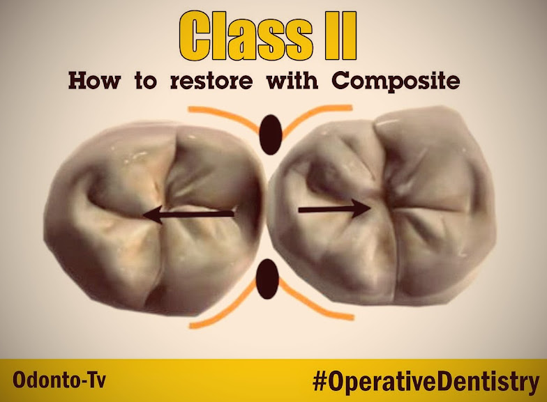 Operative-Dentistry