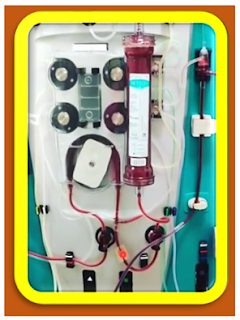 hemodialysis complications hemodialysis meaning hemodialysis machine hemodialysis procedure hemodialysis and peritoneal dialysis