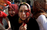 Injured Syrian women arrive at a field hospital after an air strike hit their homes in the town of Azaz on the outskirts of Aleppo, Syria, Wednesday, Aug. 15, 2012. (AP Photo/ Khalil Hamra)