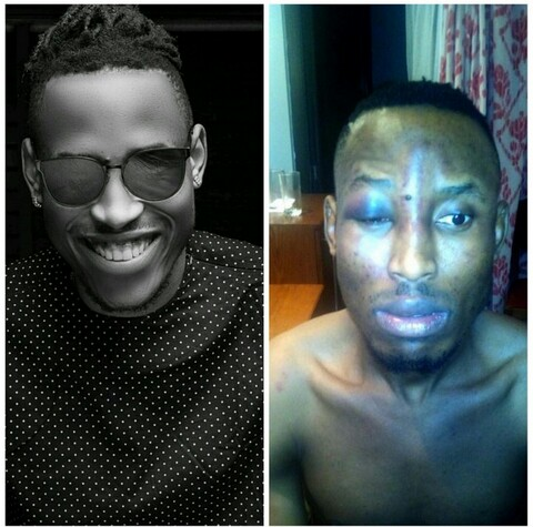 Nigerian singer, Mr 2Kay, Robbed, Beaten and Tied Down In Hotel Room [PICS]