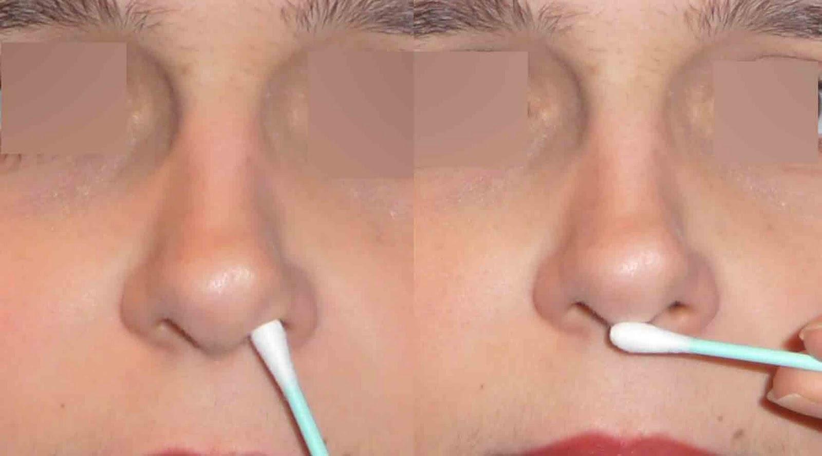 Rhinoplastie suites op ratoires conseils et pr cautions for Interieur du nez