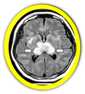 neurologic complications of coronavirus infections does covid cause neurological problems can covid cause neurological problems does covid cause neurological damage covid neurological problems neurologic complications and covid neurological complications after covid neurological problems after coronavirus neurological problems after covid neurologic effects of covid can covid 19 cause encephalopathy can covid 19 cause neurological damage neurological complications from covid-19