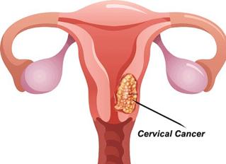 tanda kanser pangkal rahim rahim