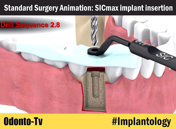 SICmax-implant-insertion