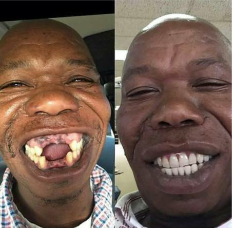 Toothless man gets perfect set of teeth