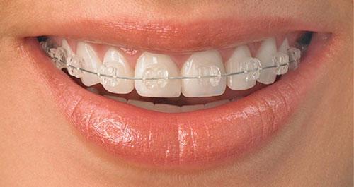 Khi nào nên sử dụng niềng răng mắc cài sứ