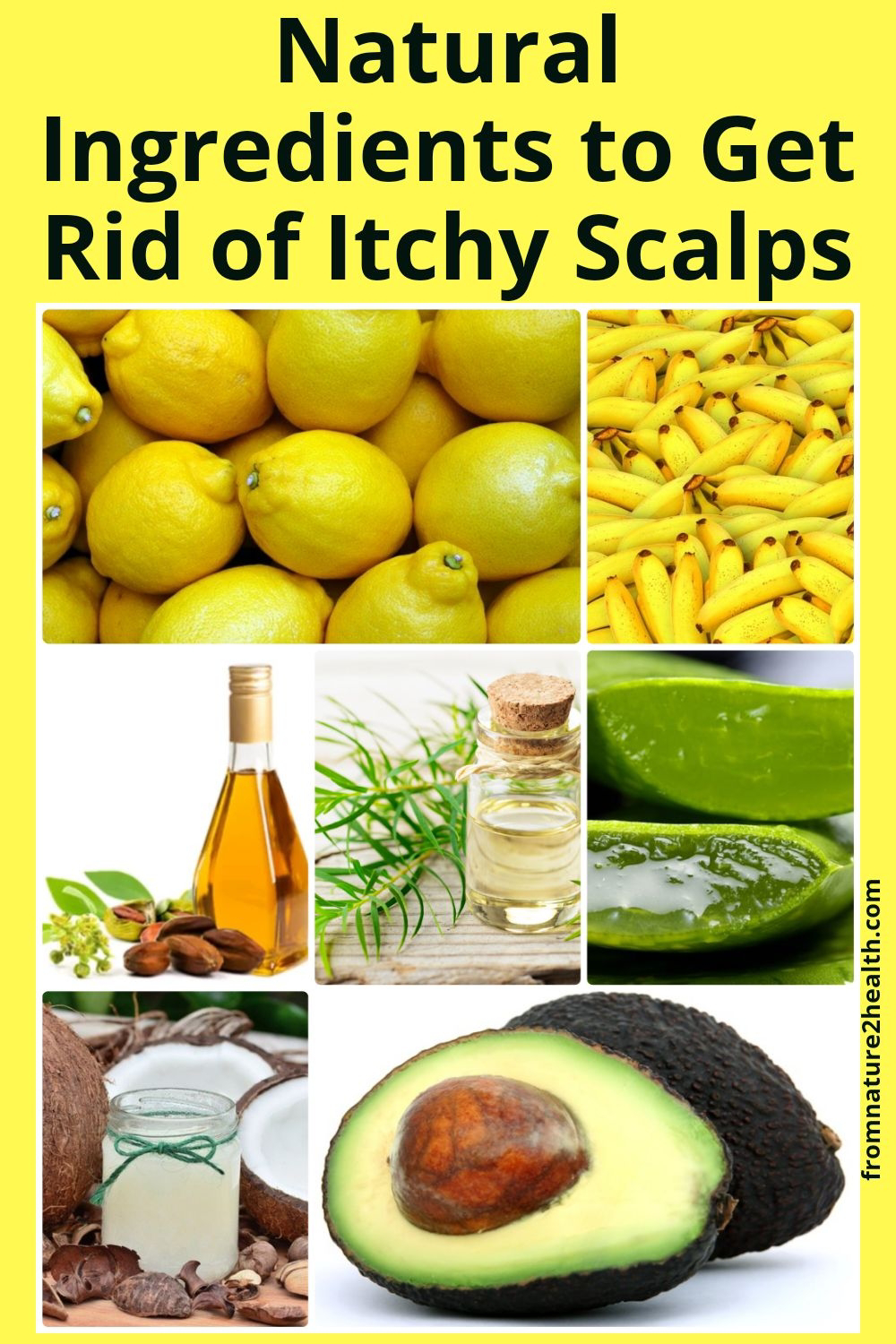 Natural Ingredients to Get Rid of Itchy Scalps