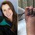 Pareja canadiense que vacacionó en Punta Cana regresó con los pies podridos por ataque de parásitos
