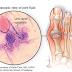 Gout, Punca Dan Cara Mengatasinya Dengan Kaedah Semulajadi
