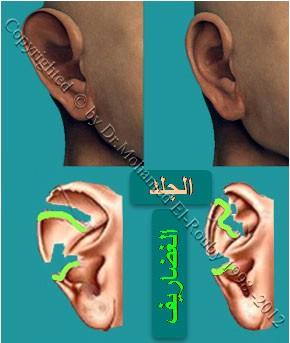 فكرة تجميل الأذن الخفاشية
