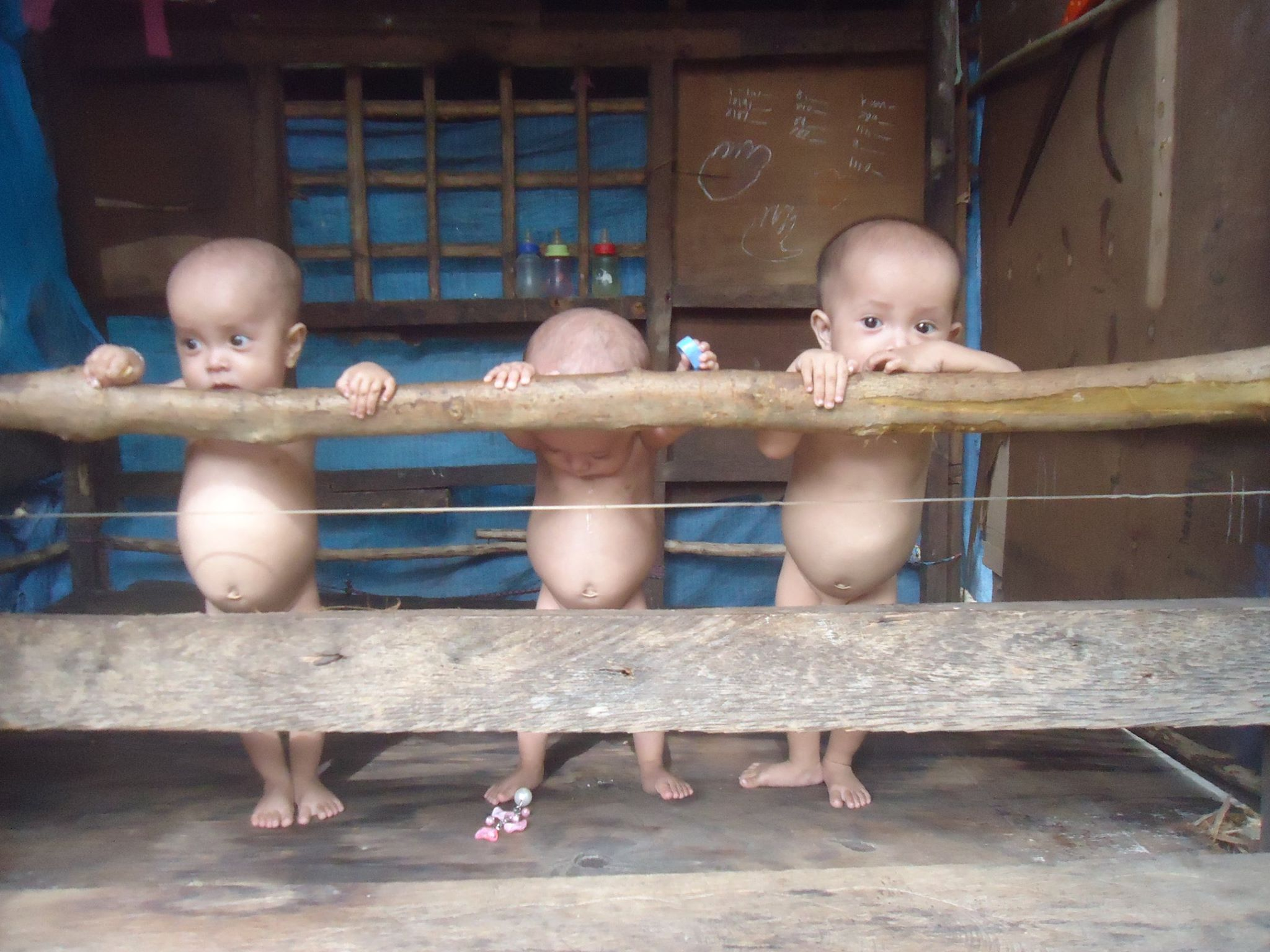 Image of Triplets with Severe Malnourishment