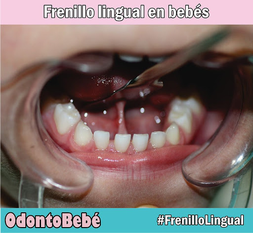 frenillo-lingual