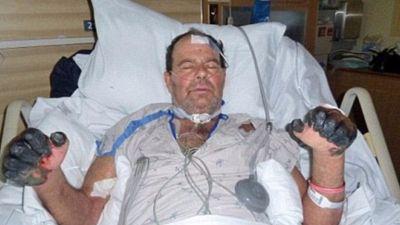 بالصور :/ أول الإصابات بفيروس الدبلي بالولايات المتحدة الأمريكية 