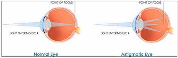 astigmatisma1 Obat Herbal Mata Astigmatisma