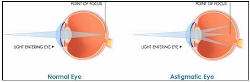 Nutrisi Herbal Untuk Mata Astigmatisme (Mata Silinder)