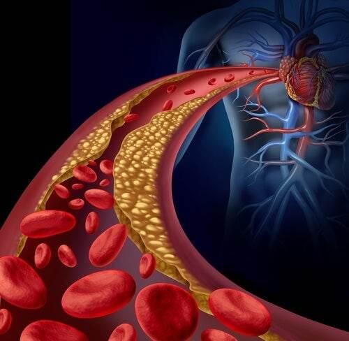 ما هي الدهون الثلاثية : الاسباب, طريقة العلاج, تحليل القياس, الاعراض