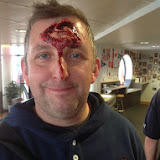 Scott looking too happy with his head injury! - July 2014 Photo: Dave Riley