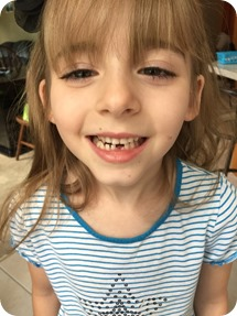 Elaine lost her first tooth!