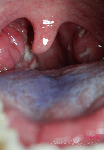 Swollen uvula white spots image search results
