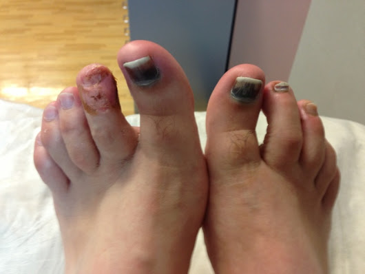 Post strollmatic toe disorder?