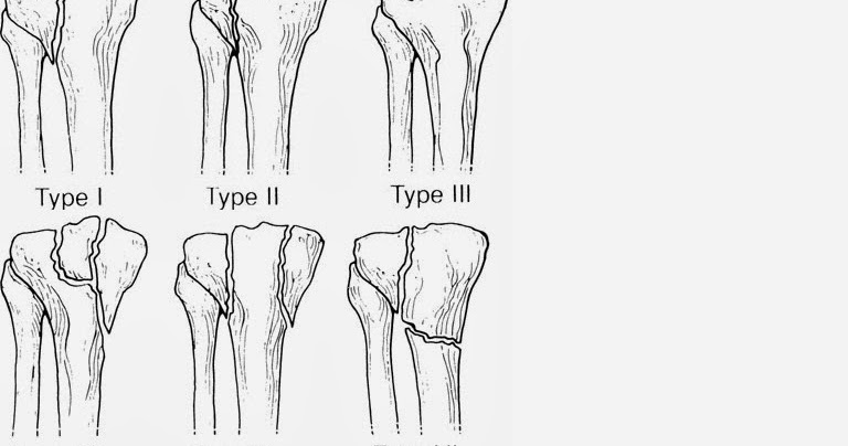Tibial bone fracture smallcollation - Tibial plafond fracture classification ...