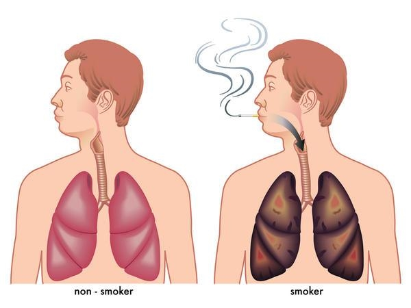 CAUSES-OF-LUNG-CANCER