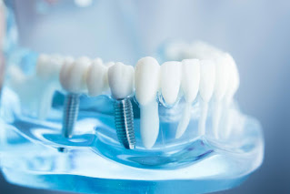 This is a picture of dental implants