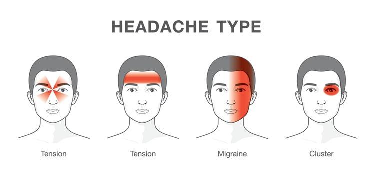 tips_merawat_sakit_kepala_tanpa_panadol