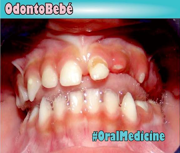 Regional-Odontodysplasia
