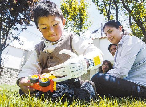Niño alteño recibe una prótesis de mano en 3D