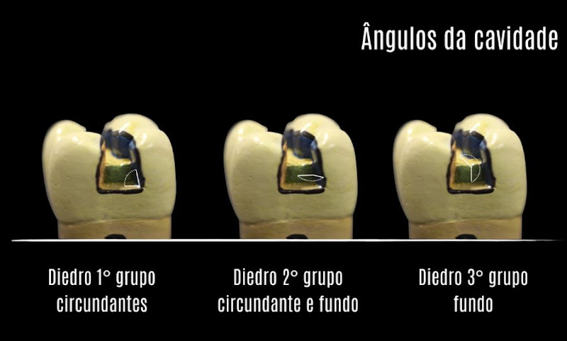 Angulos-Cavitarios