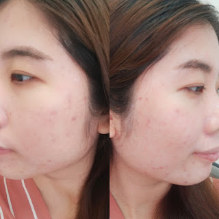 before-after-treatment-di-erha-clinic
