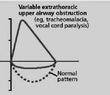 Learning Critical Care Medicine: Vocal Cord Dysfunction