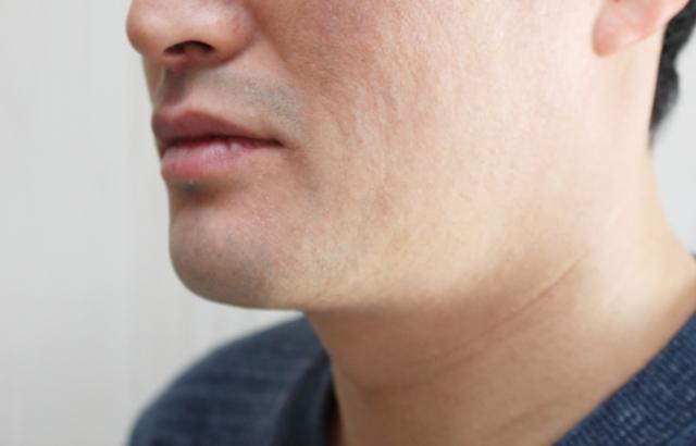 と 髭 濃く なる 剃る