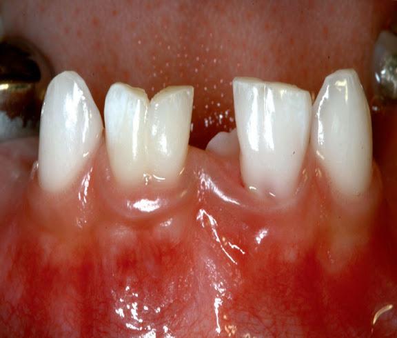 fusion-dental